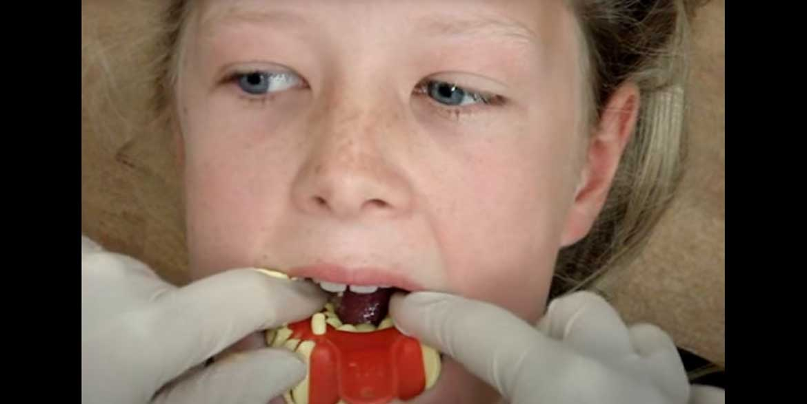 Watch Video: Taking Lower Impressions West London Orthodontist