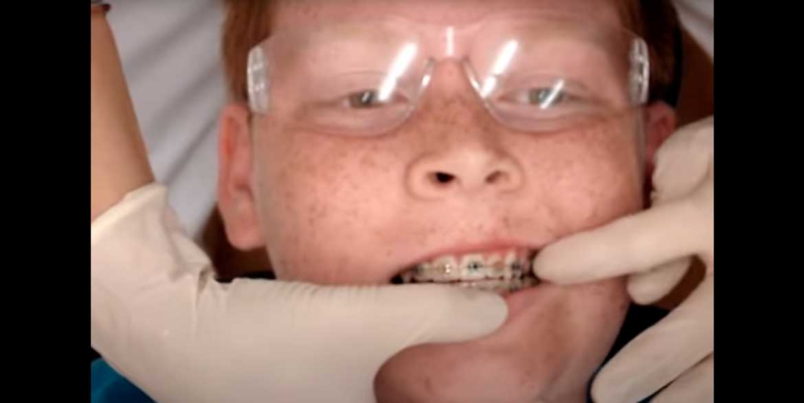 Watch Video: Fixed Adjustment - Upper & Lower Archwires West London Orthodontist
