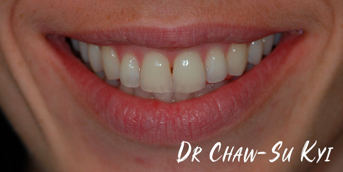 Lingual braces - After Treatment  Photo, teeth, patient 3