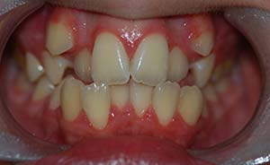 Braces and Teeth Extraction: Severe crowding