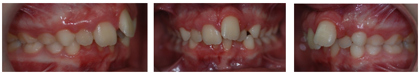 Before Early brace treatment