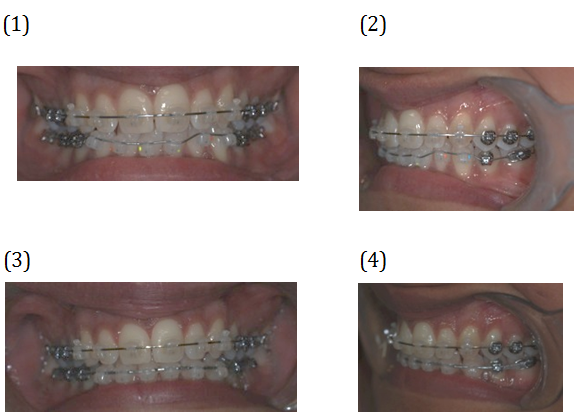 Adjusted Braces. Before and After Photos - patient (frontal view, oblique view)